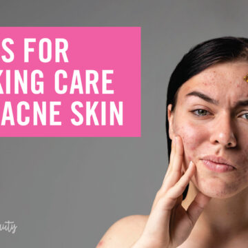 Tips for Taking Care of Acne Skin